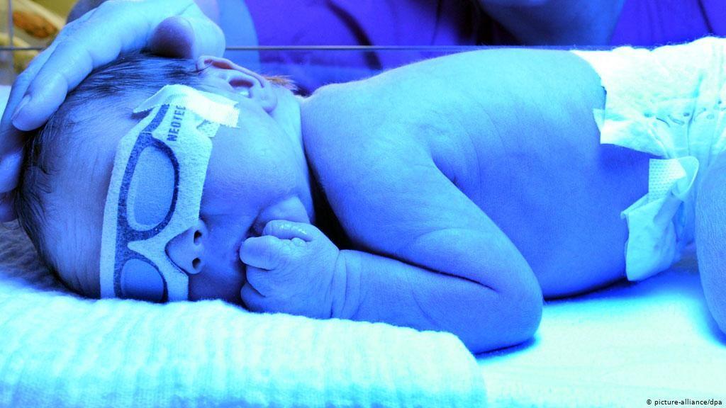 rawatan-bayi-kuning